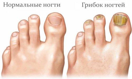 Против грибка ногтей уксус с глицерином используют ежедневно в течение полугода