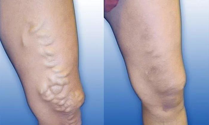 Венофлебин применяется при венозной недостаточности нижних конечностей