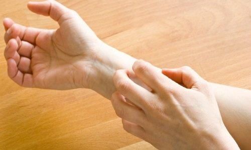 При использовании мази иногда бывает раздражение кожи