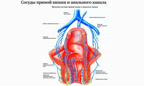 Ножка узелка пережимается сфинктером, происходит отёк венозного скопления