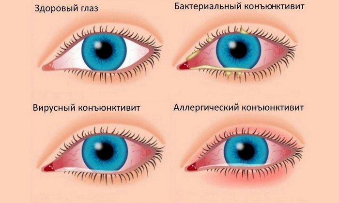 Мазь глазная содержит 3% основного вещества, закладывается под нижнее веко при конъюнктивите