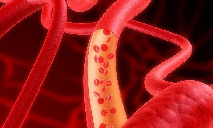 Лекарственное средство не назначают пациентам с патологиями крови