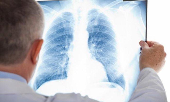Тримедат назначают при подготовке к рентгенографии ЖКТ