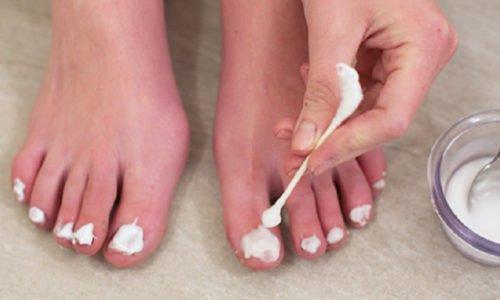 Для лечения грибка ногтей лечебную смесь следует наносить на предварительно распаренные ноги