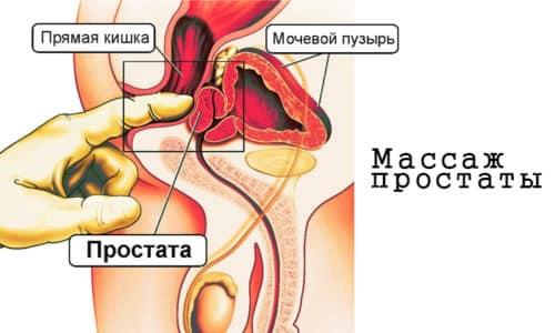 Врачи рекомендуют дополнять медикаментозное лечение физиотерапевтическими процедурами, которые улучшают кровообращение в малом тазу