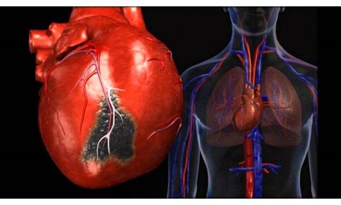 Препарат используется после инфаркта миакарда