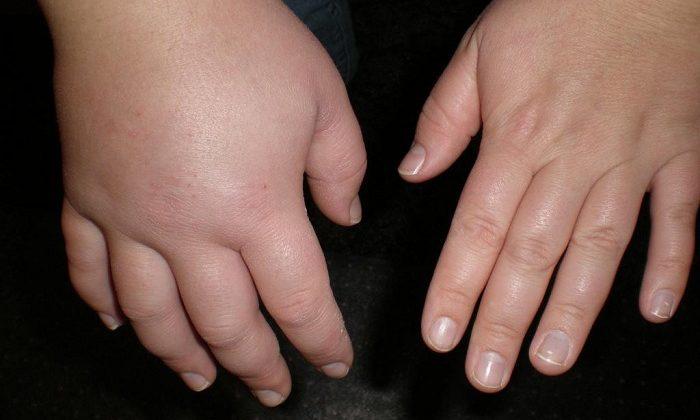 Венофлебин используется в составе комплексной терапии при застое лимфы