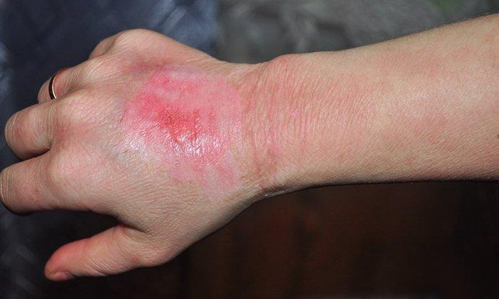 Растворы масляной консистенции используются для наружной обработки поврежденных участков кожи при обморожениях и ожогах не реже 3 раз в сутки