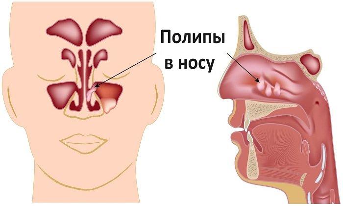 Препарат используется для лечения полипов в носу