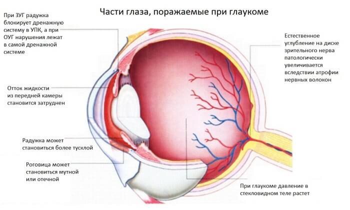 Лекарство не употреблять при глаукоме