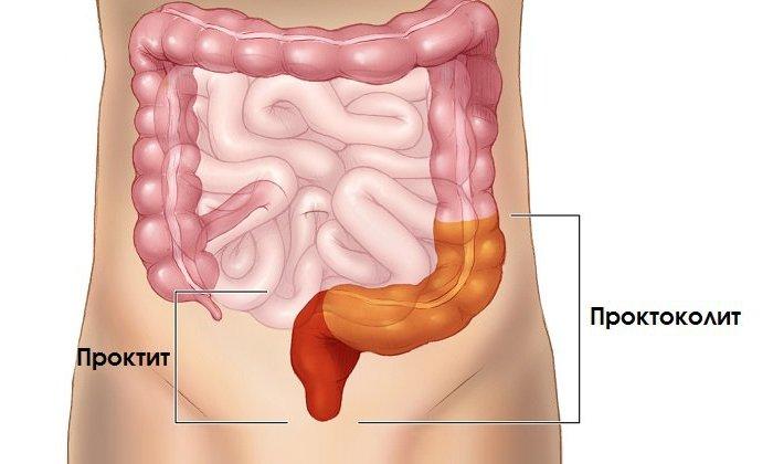Применение Проктозана показано при трещинах и воспалительных процессах прямой кишки (проктите), анальной экземе и геморрое 1-2-й степени тяжести
