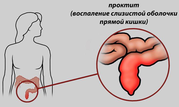 Препарат оказывает противовоспалительное действие