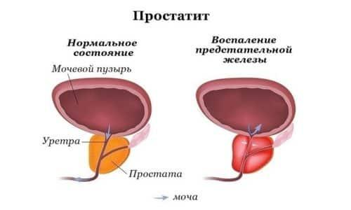 Бессимптомный простатит, иначе именуемый асимптоматическим или латентным, - это воспаление предстательной железы, которое протекает без выраженных признаков