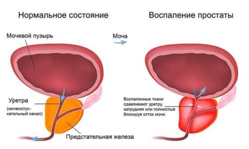 Простатит - распространенное заболевание, при котором острое течение резко сменяется периодом ремиссии