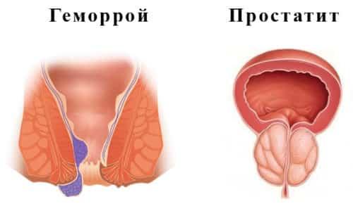 Геморрой и простатит относятся к воспалительным заболеваниям органов малого таза и часто имеют в анамнезе одинаковые причины