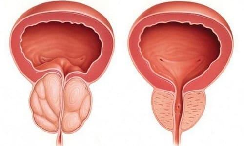 Проникновение трихомонад в ткань предстательной железы приводит к возникновению трихомонадного простатита