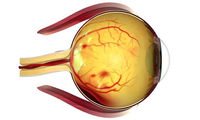 Лекарство назначают при поражение сетчатки глаза при сахарном диабете