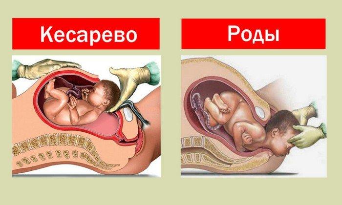 Также препарат используют для ослабления маточных сокращений при родах и устранения спазма шейки матки