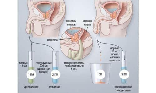 Анализ секрета простаты позволяет определить наличие или отсутствие воспалительного процесса в предстательной железе