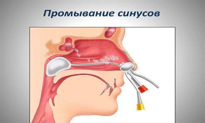 Лидокаин можно использовать при промывании синусов