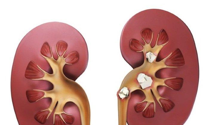 Спазмол применяется в лечении мочекаменной болезни