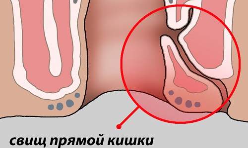Во время осмотра на коже промежности можно выявить наружное отверстие ректального свища