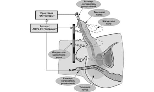 Трансректальная термотерапия подразумевает, что в прямую кишку вводится стерильный нагреватель, смазанный вазелином