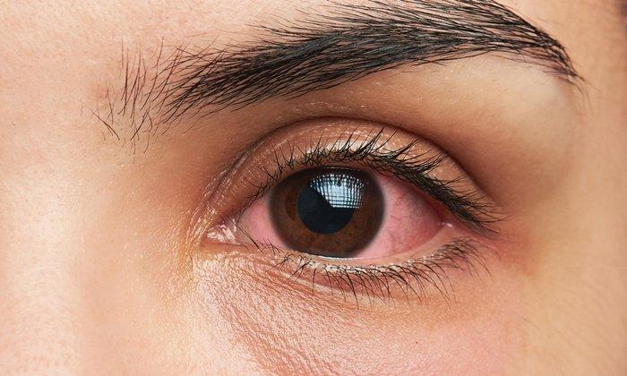 Воспаление глаз хорошо снимает вазелиновое масло