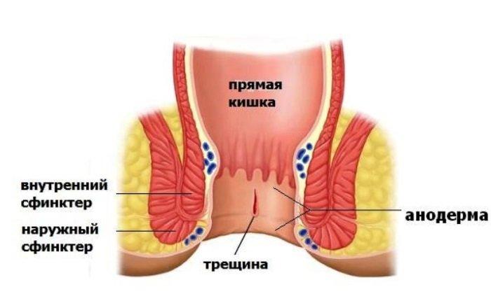 Препарат используется при трещинах прямой кишки