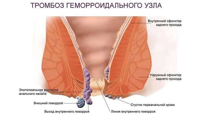 Показанием к применению препарата Лидокиан является тромбоз геморроидальных узлов