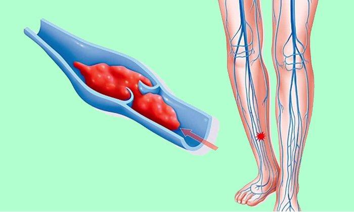Гепарин способствует устранению уже образовавшихся тромбов и снижает риск появления новых