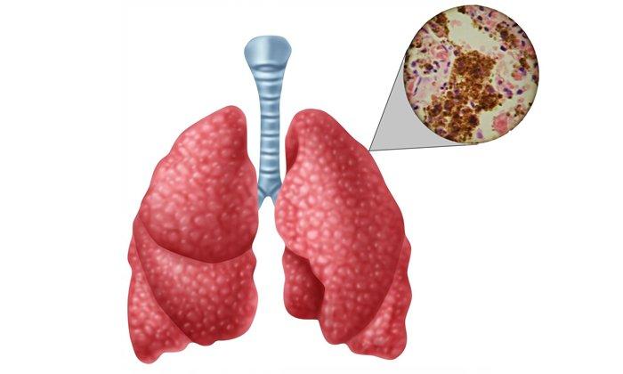 Из-за туберкулеза применять Релиф ультра нельзя