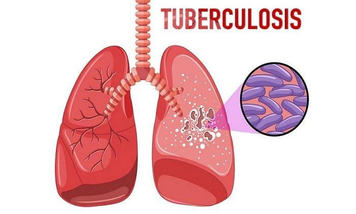 Средство эффективно действует при туберкулезе