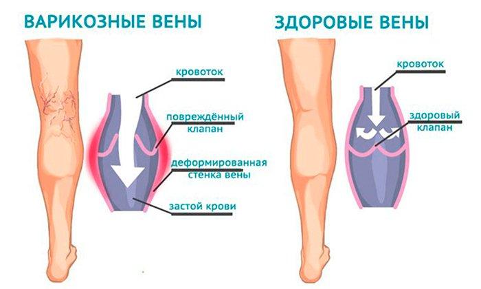 Препарат назначается при варикозном расширении вен