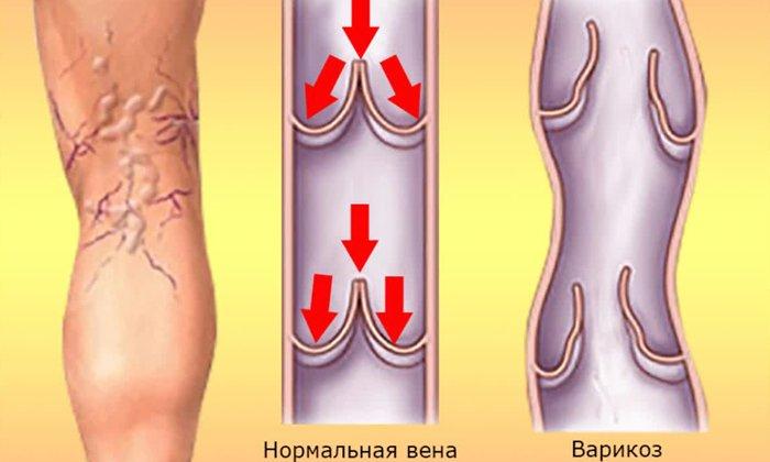 Лекарственные препараты, содержащие витамин Р, применяют для профилактики и лечения варикоза нижних конечностей