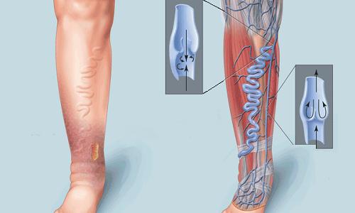 Актовегин 5 используют для лечения варикозного расширения вен