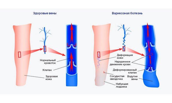 Медикамент помогает восстановить работу организма: сокращается риск формирования тромбофлебита и венозной недостаточности в хронической форме