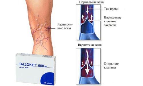 Средство Вазокет назначается при распространенных патологиях: хронической венозной недостаточности, варикозе и предварикозных состояниях, нарушении лимфатического оттока и т.д