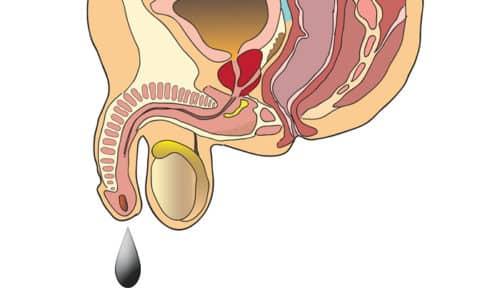 Главным симптомом воспаления простаты считаются выделения из уретры