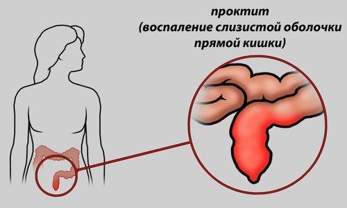 Суппозитории противопоказано использовать пациентам с воспалительными процессами в прямой кишке
