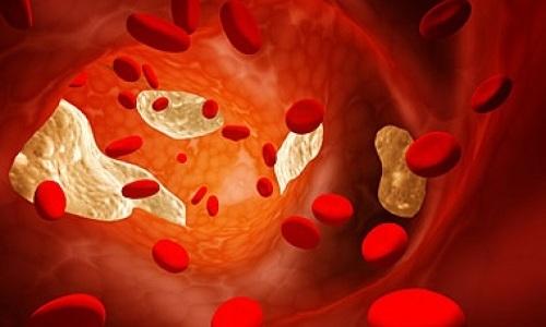Компоненты собачьего жира помогают нормализовать уровень холестерина крови