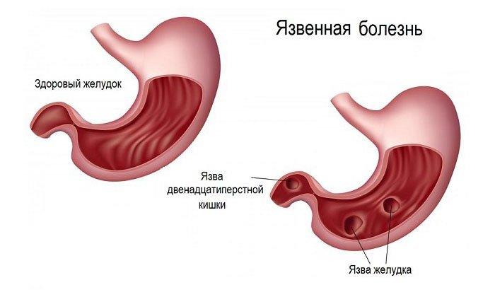 Препарат назначается с осторожностью пациентам, страдающим, например, язвой и эрозией желудка и 12-перстной кишки