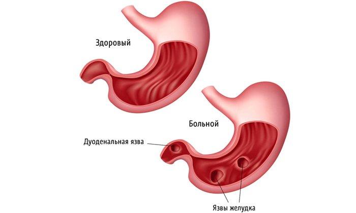Прием препарата назначают при язвенной болезни желудка