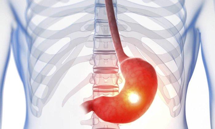 Нельзя принимать препарат при язве желудка и 12-перстной кишки