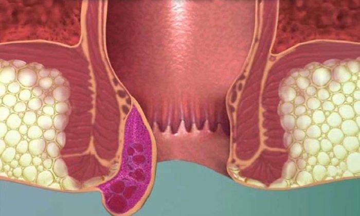 Вазелиновое масло выступает в роли лекарства от воспаленных геморроидальных узлов