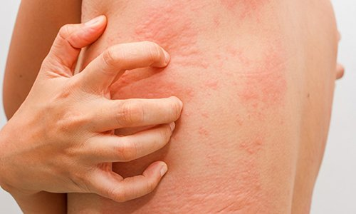 При лечении могут возникнуть аллергические проявления в виде крапивницы, жжения, зуда, покраснения кожного покрова