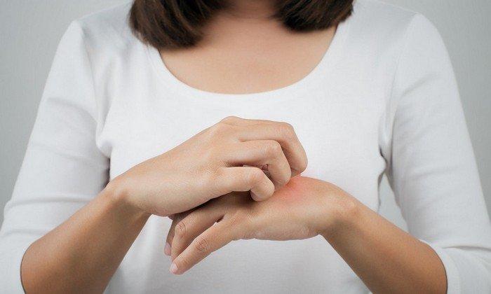 Инструкция по применению указывает, что при использовании может развиваться местная аллергическая реакция: кожный зуд, жжение, крапивница, локальные отеки