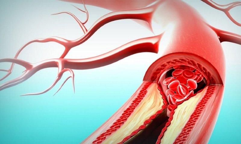 Актовегин назначают для лечения нарушения периферического кровообращения