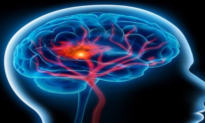 Нарушение мозгового кровообращения так же является показанием к применению Актовегина