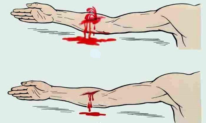 Препарат противопоказан при наружном кровотечении
